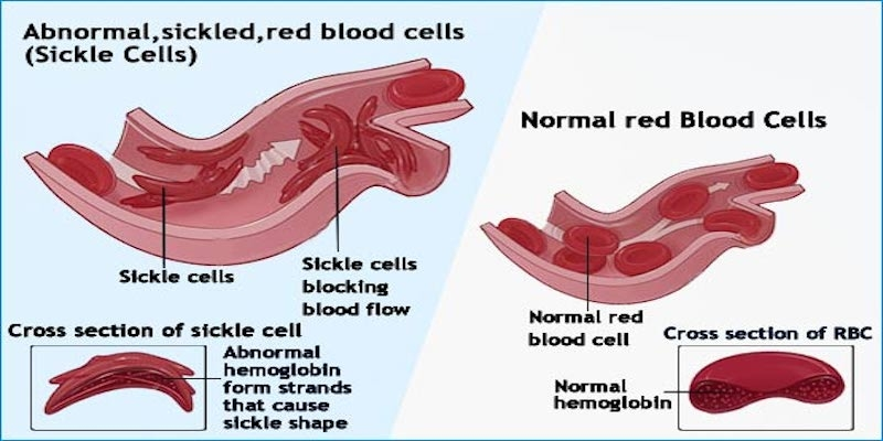 health moment sickle cell and an ileus