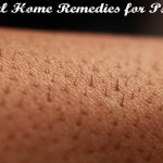 Health Moment: Psoriasis Natural Remedies