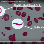 Hope For Adults with Sickle Cell #30forSickleCell